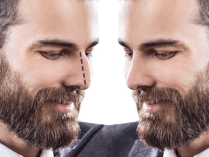 بهترین جراح بینی مردانه در یزد